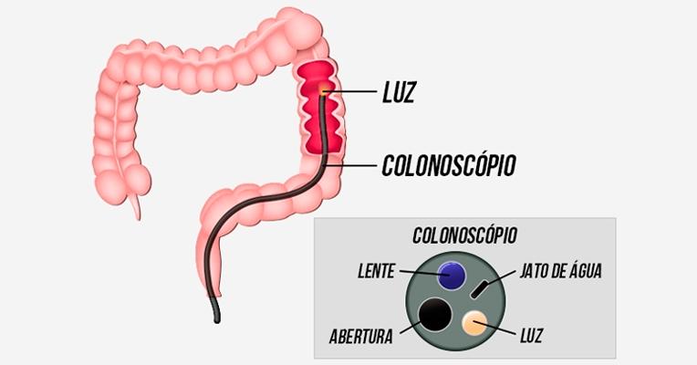 liquido para fazer colonoscopia