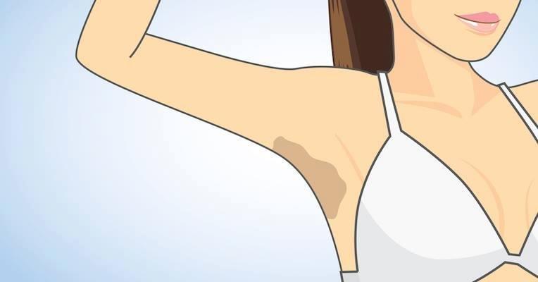 3 Formas De Clarear Axila E Virilha Naturalmente Tua Saude