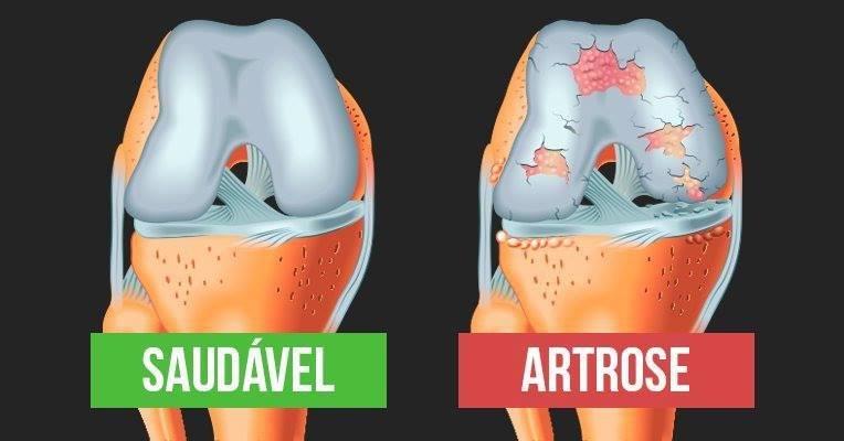 medicamento para artrose de joelho