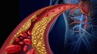 Imagens ilustrativa de Colesterol