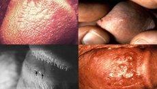 Descubre cómo identificar los síntomas del herpes genital