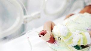 Prematuro - Meu bebê chegou antes da hora imagem de destaque