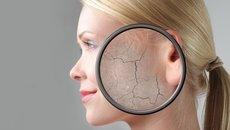 6 Causas principales de comezón en la piel y cómo tratar