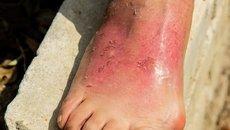 Pele de peixe pode ser usada para queimaduras