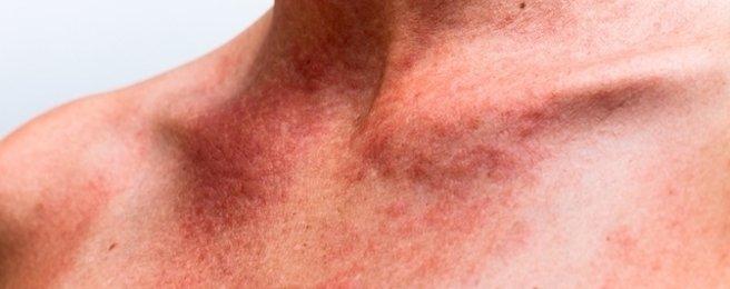 Como identificar e tratar a Alergia na pele