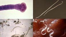 9 síntomas de parásitos intestinales